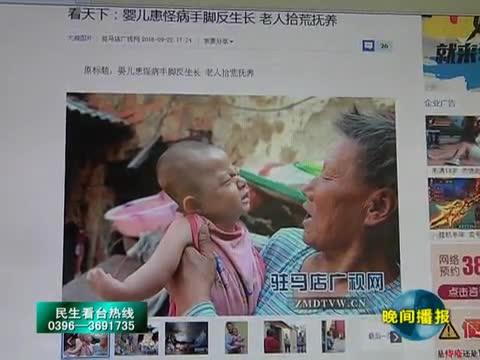 """残疾儿童""""三斤""""报道引发社会广泛关注"""